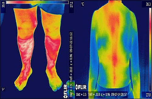 диагноз по тепловизору