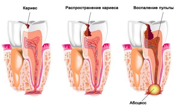 Кариес - зло зубов
