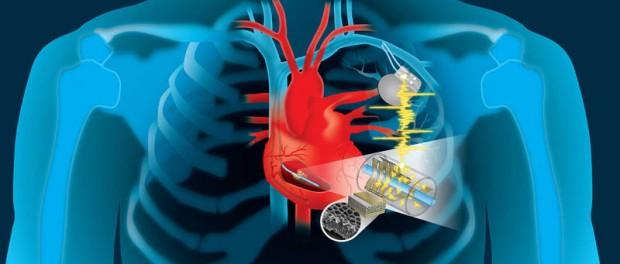 Американские ученые создали идеальный полимер для имплантов